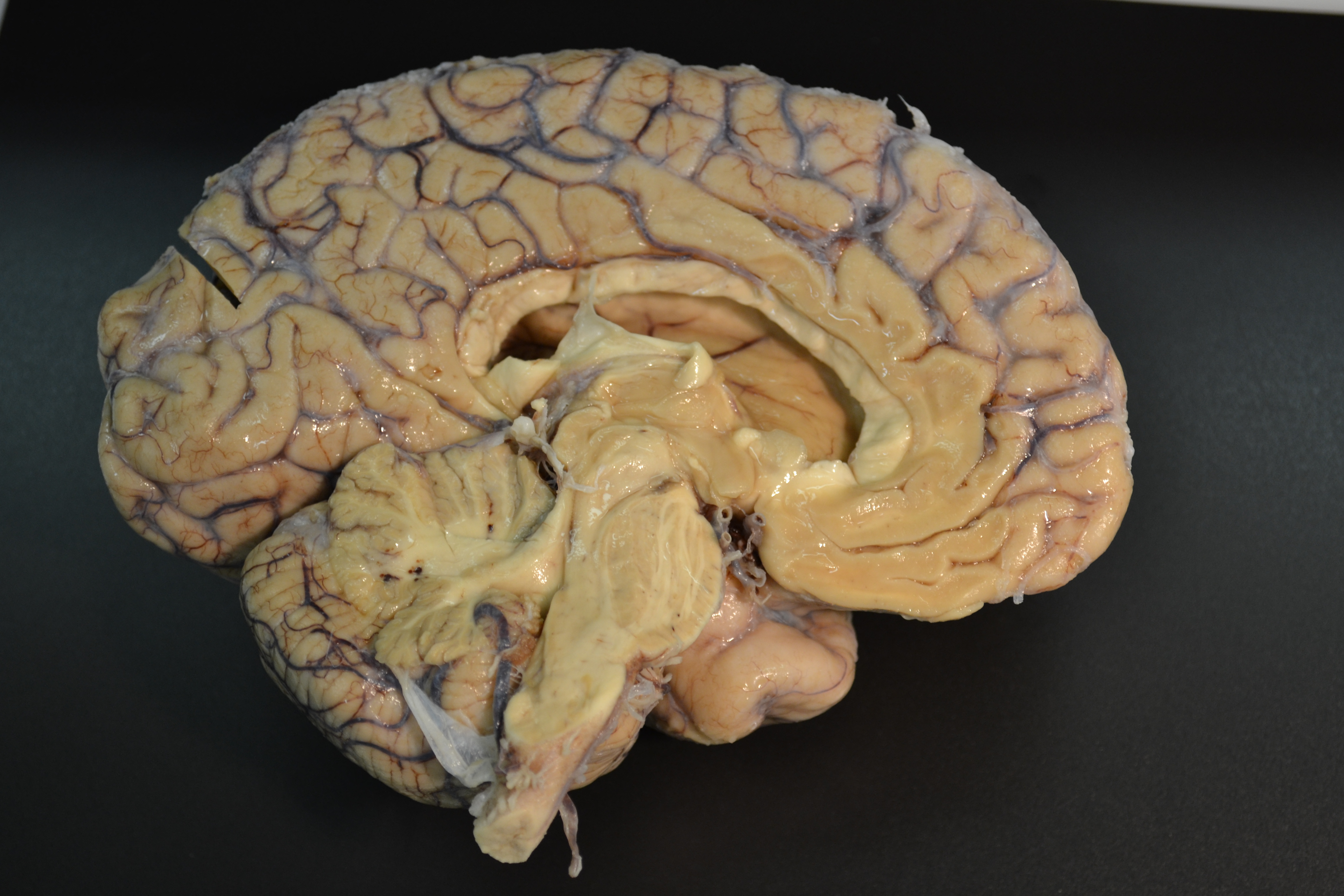 La Universidad de Salamanca invita a descubrir los misterios del cerebro