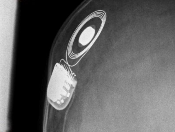 Científicos de la Universidad de Salamanca desarrollan un procedimiento pionero que mejora el rendimiento de los implantes cocleares en los ambientes ruidosos